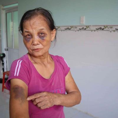 Vụ con dâu đánh mẹ chồng bầm tím mắt: Xin lỗi mẹ chồng tại công an xã